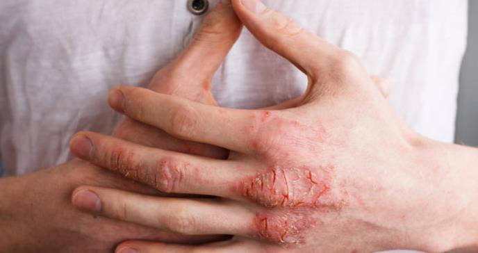 Dermatología debería poder abordar la psoriasis con psicólogos