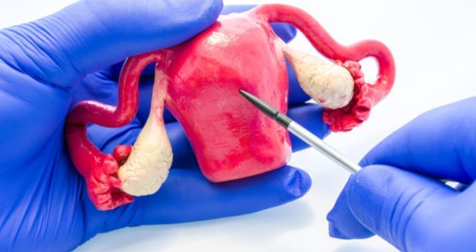 En Latinoamérica mejoran técnica de trasplante de útero con esperanzador resultado
