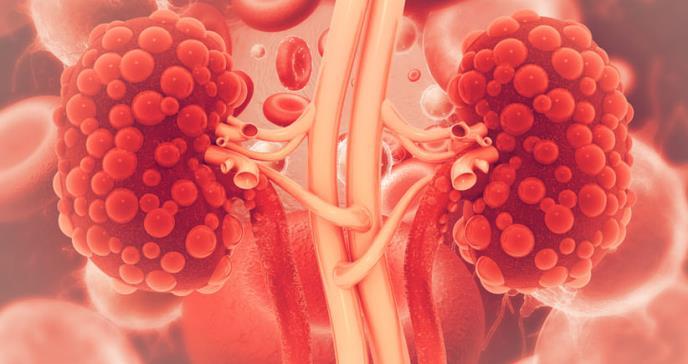 Desarrollan nuevo tratamiento para enfermedad renal incurable y mortal