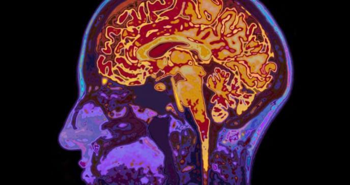 Describen un nuevo tipo de demencia similar al alzhéimer