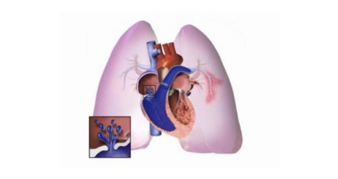 Descrita una región en el genoma implicada en el desarrollo de la hipertensión arterial pulmonar