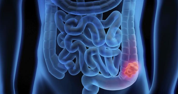 Descubren gen que podría facilitar nuevos tratamientos para EII