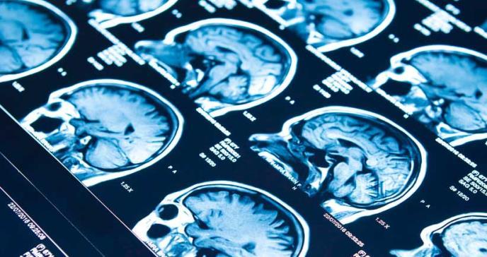 Descubren tres medicamentos anticonvulsivos efectivos para tratar la epilepsia