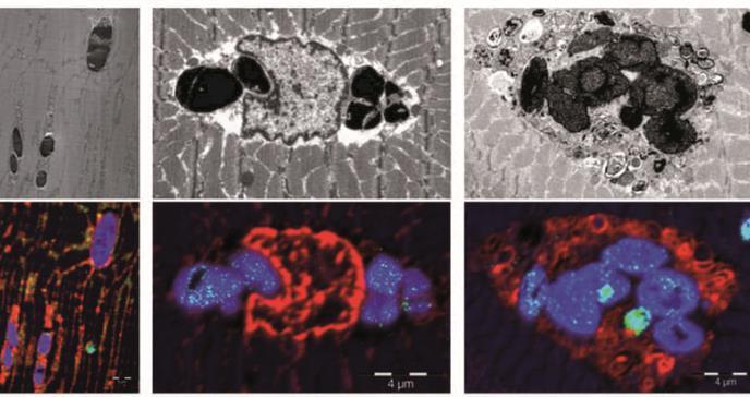 Descubren una nueva enfermedad: la mioglobinopatía