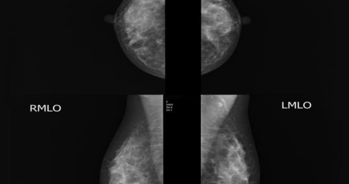Té oolong: bebida que contribuiría a prevenir el cáncer de seno