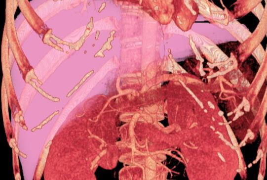 Desvelan una proteína clave para el funcionamiento del hígado