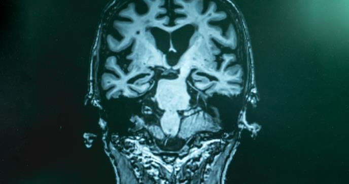 Nueva terapia podría evitar el deterioro cognitivo en adultos mayores