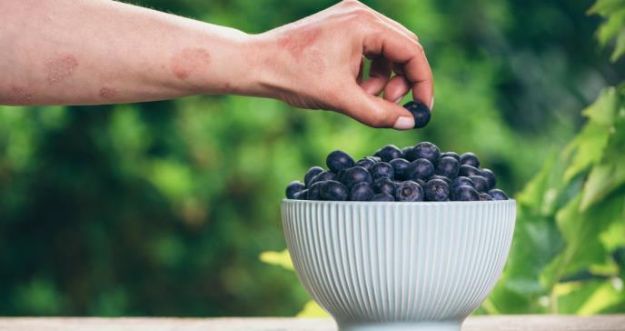 Modificaciones en la dieta podrían tener efectos positivos en el manejo de la psoriasis