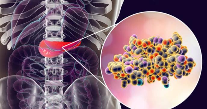 Hallan posible vía de tratamiento para el cáncer de páncreas
