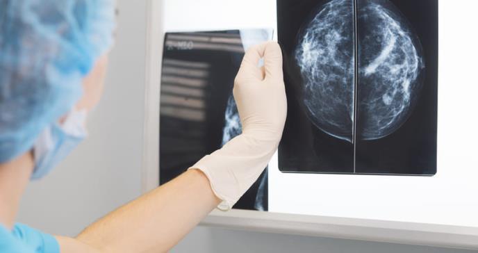 Dispositivo detectaría cáncer de mama sin radiación
