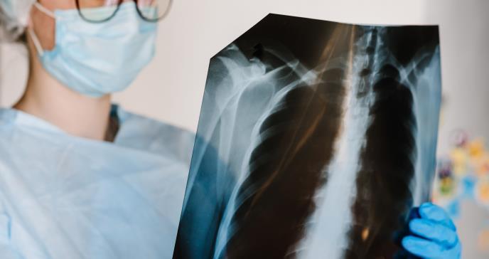 Utilidad de la ecografía pulmonar en pacientes con sospecha de COVID-19