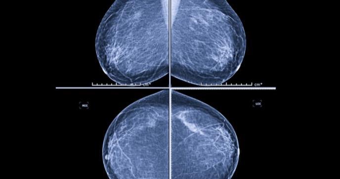 El examen para detectar cáncer de seno salvó 27.000 vidas en 2018