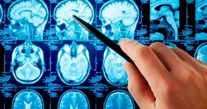 El 25 % de los casos de cáncer de pulmón desarrollan metástasis cerebral