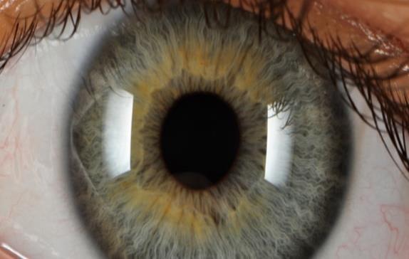 El adelgazamiento de la retina, indicador precoz de párkinson