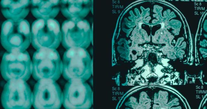 El analfabetismo aumentaría tres veces más el riesgo de demencia