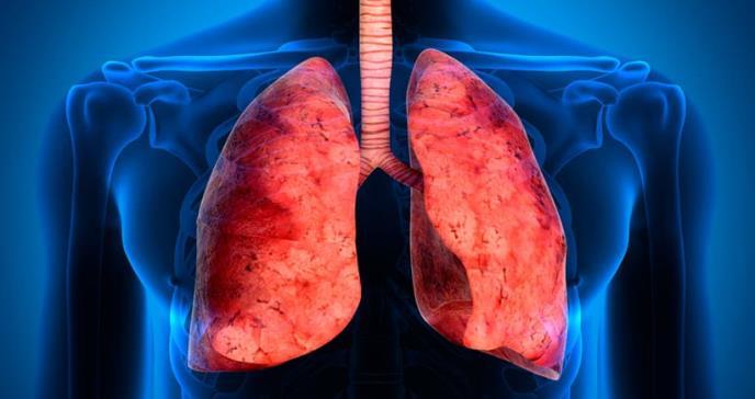 El cáncer aumenta la probabilidad de sufrir de trombosis