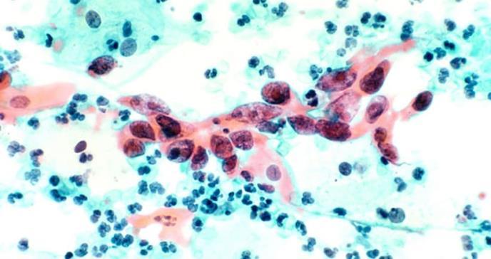 El cáncer cervical es más agresivo cuando no hay virus del papiloma humano