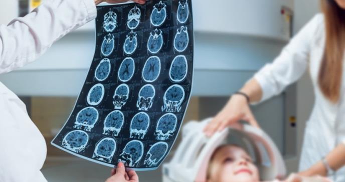El cerebro de los niños se reorganiza después de una cirugía de epilepsia para retener la percepción visual