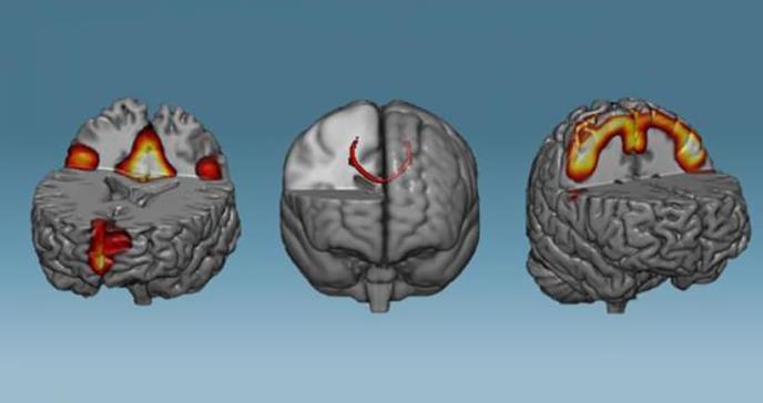 El entrenamiento de media hora que fortalece tu cerebro