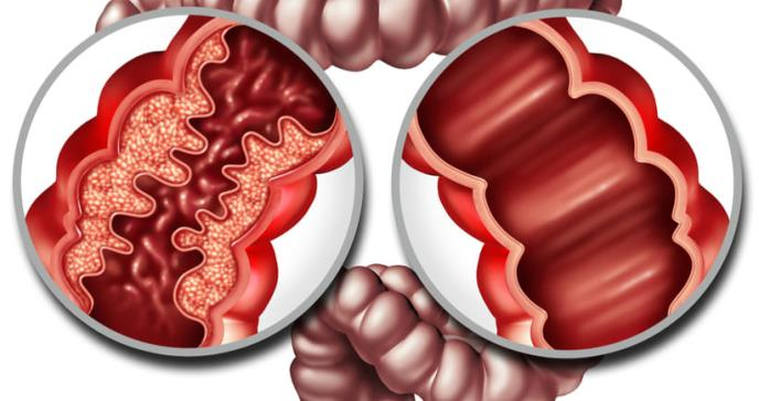 Enfermedad de Crohn