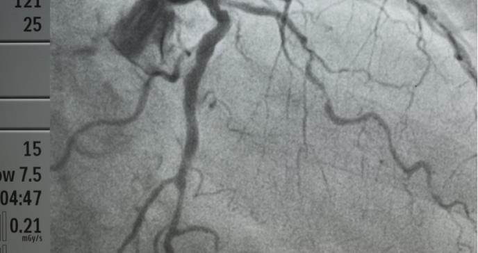 Estrategias para prevenir la enfermedad coronariana