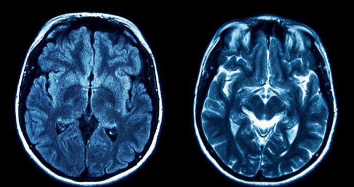 En qué se diferencian el alzhéimer y la demencia