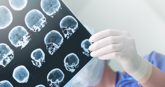 Análisis genético puede ayudar a detectar la epilepsia más rápido en niños