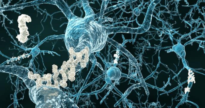 Establecen el umbral patológico de la proteína asociada al alzhéimer
