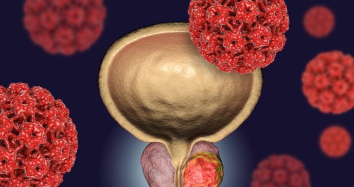 Estos son los síntomas del cáncer de próstata