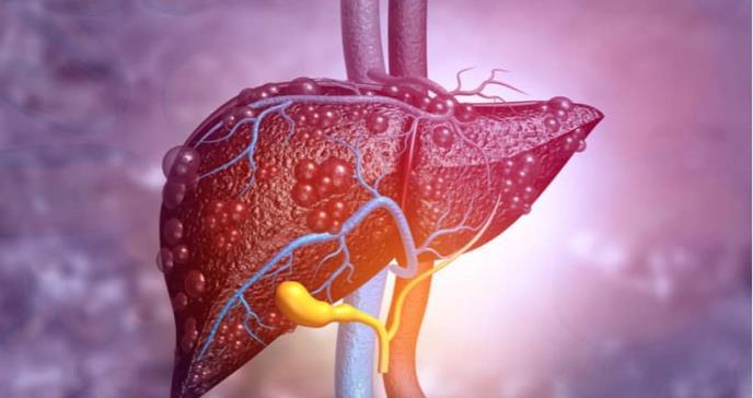 Estudio revela las causas del fallo del hígado en pacientes con hepatitis alcohólica aguda