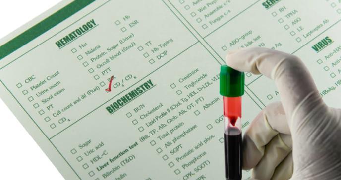 Necesaria la prueba CD4 para reducir el VIH en países de ingresos bajos: expertos