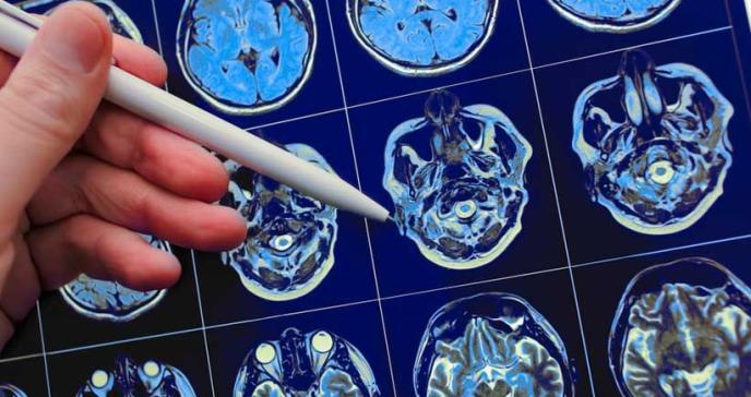 Fármaco ayuda a limitar daño causado por lesiones cerebrales