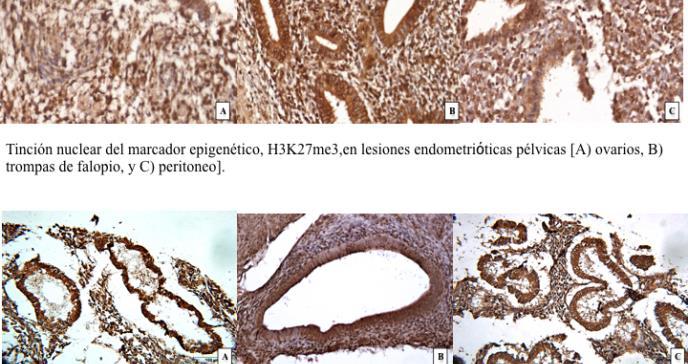 Despunta la investigación científica de la epigenética de la endometriosis en Ponce