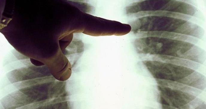 El extraño caso de la curación de un linfoma de Hodgkin por la COVID-19