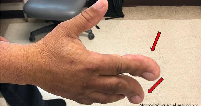 Salvan extremidad de paciente con tumor de la mano en Hospital Oncológico de Puerto Rico