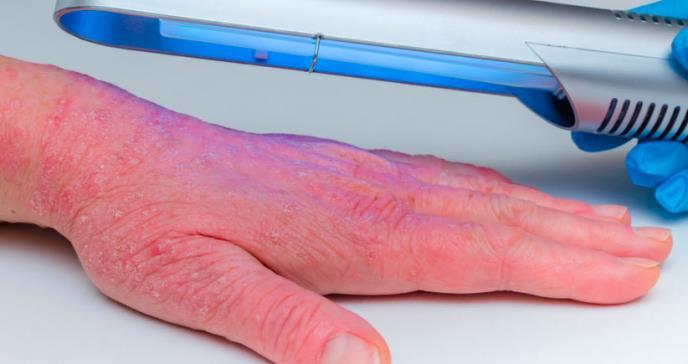 Fototerapia, efectivo tratamiento en pacientes con dermatitis atópica