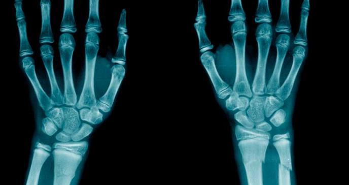 Pacientes con dermatitis atópica tendrían mayor riesgo de fracturas