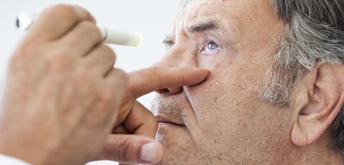 Unas 25.000 personas diagnosticadas de glaucoma podrían sufrir ceguera total