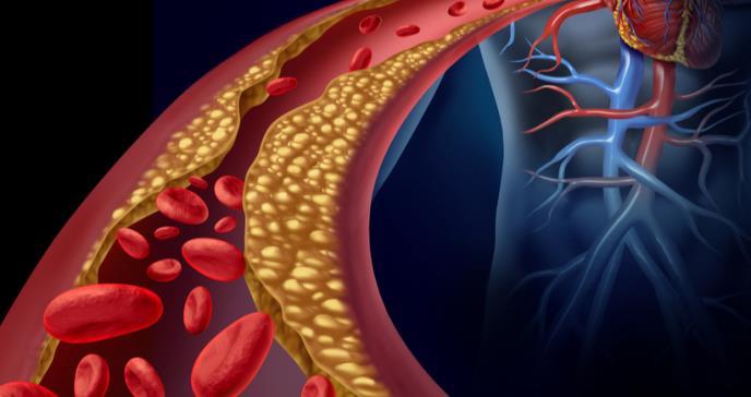 Grasas saturadas y una predisposición al origen de enfermedades cardíacas por niveles de colesterol