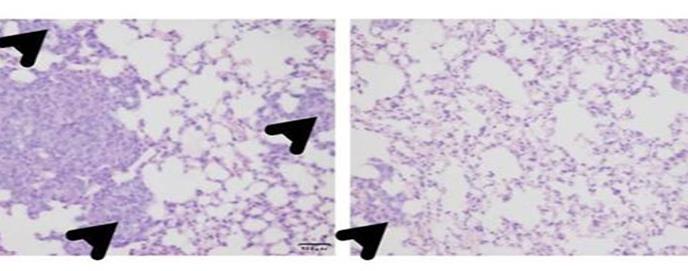 Hallado un fármaco capaz de prevenir las metástasis del cáncer de mama más letal