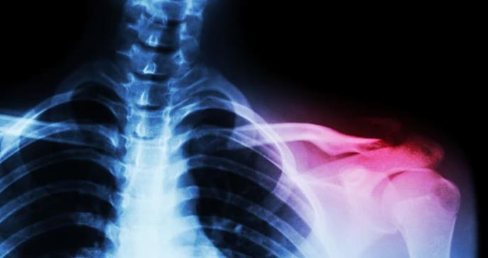 Hallan anomalía genética asociada con la osteoporosis familiar