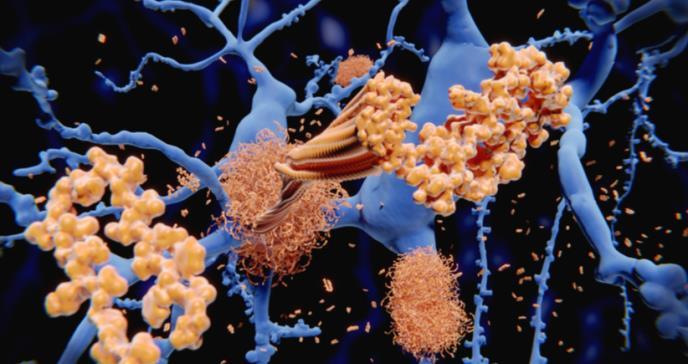 Hallan nueva proteína para retardar progreso del alzhéimer