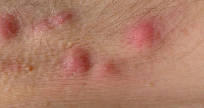 La hidradenitis supurativa se asocia a un riesgo aumentado de ciertos tipos de cáncer