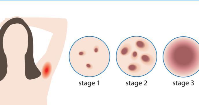Hidradenitis supurativa y sus aspectos terapéuticos