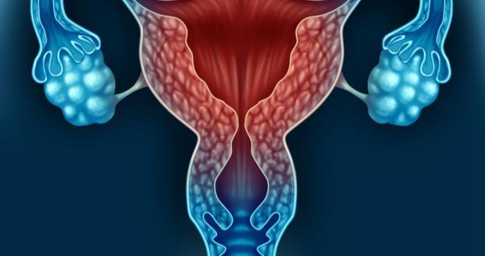Mayor riesgo femenino para depresión y ansiedad después de histerectomía