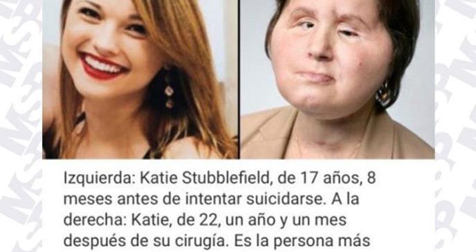 Histórico trasplante de rostro le da a esta joven que intentó suicidarse una segunda oportunidad