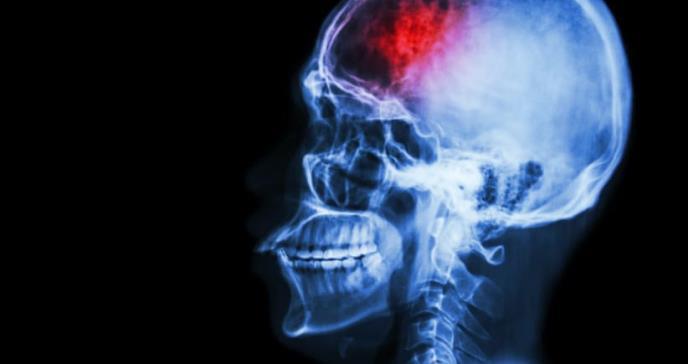 Ictus, seis síntomas que alertan de un accidente cerebrovascular