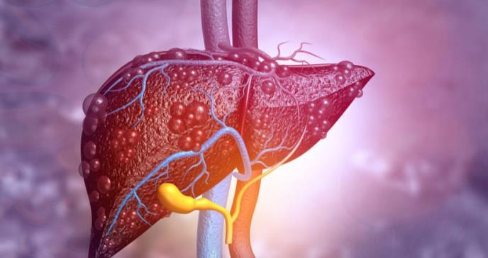 Identifican los beneficios de recibir TIPS en pacientes con problemas hepáticos