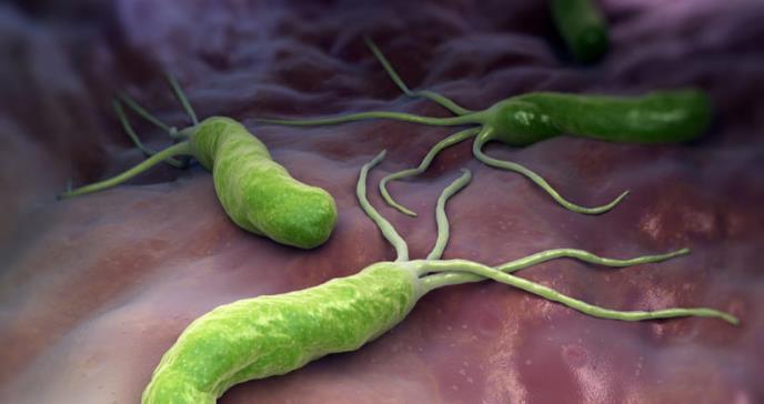 Identifican una mucosa que oculta el cáncer de estómago