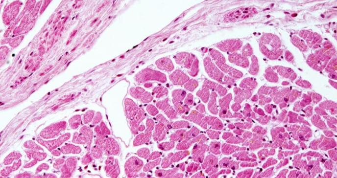 Identifican una posible diana farmacológica para una enfermedad cardíaca mortal